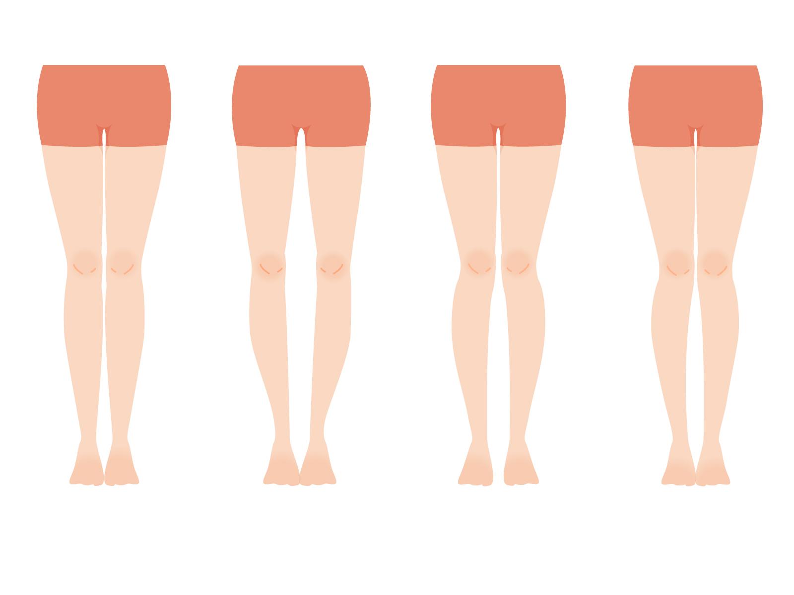 変形性膝関節症を予防して美脚になる方法